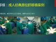 广西壮族自治区人民医院移植科技术及案例(部分器官图片可能会引起不适,请慎入)